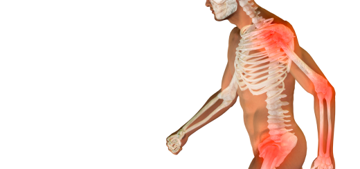 upn_salud_osteoporosis
